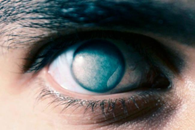 Evisceração do globo ocular