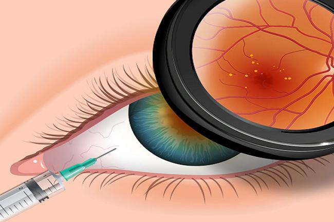 Retina e Vítreo – Injeção intravítrea