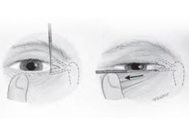 Sondagem das Vias Lacrimais